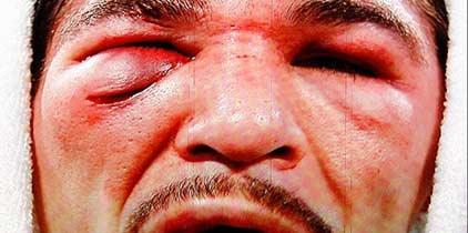 Antonio Margarito ya puede volver a boxear, según su médico