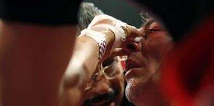 Jorge 'Travieso' Arce fue operado de la nariz, luego de su pleito ante Vázquez Jr.